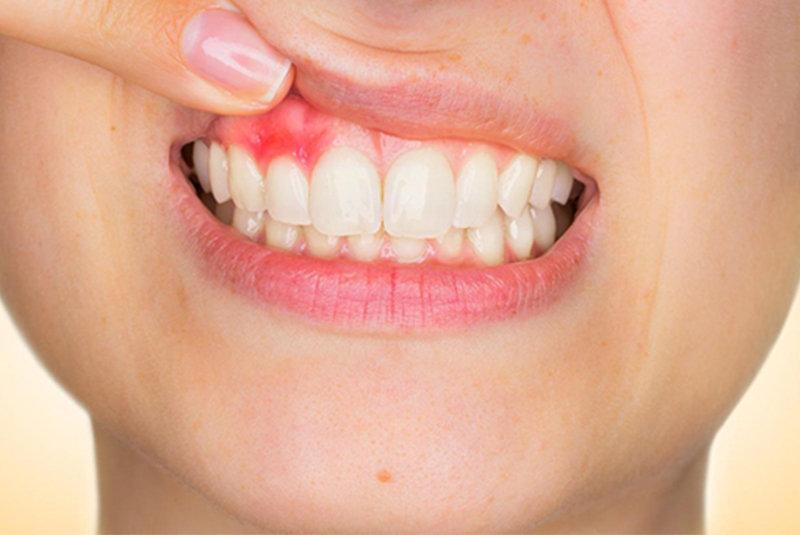 Câncer de boca e Tabagismo